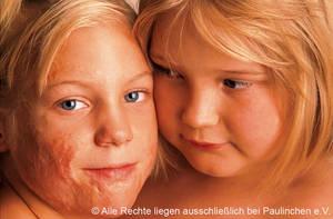 Kinder mit Brandverletzungen